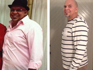 before after hcg diet